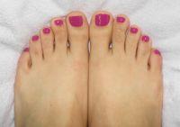 Fußnägel in Pink Füsse