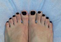 Schwarzer Nagellack Füße Füsse