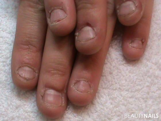 Fingernagel kauen aufhören, stoppen & abgewöhnen Nägel kauen