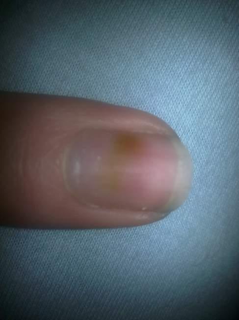 Das Behandlungsschema gribka der Nägel auf der Hand
