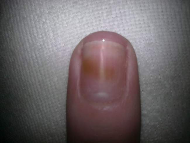 bild fleck auf dem nagel hilfe was ist das nagelkrankheiten. Black Bedroom Furniture Sets. Home Design Ideas