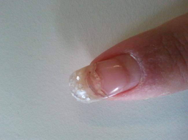 Nagel ist kaputt! in Acrylnägel