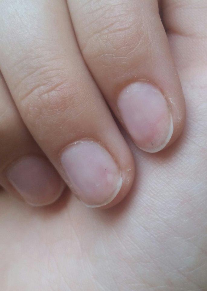 Bild Weiu00dfe Verfu00e4rbung Am Nagel - Nagelkrankheiten