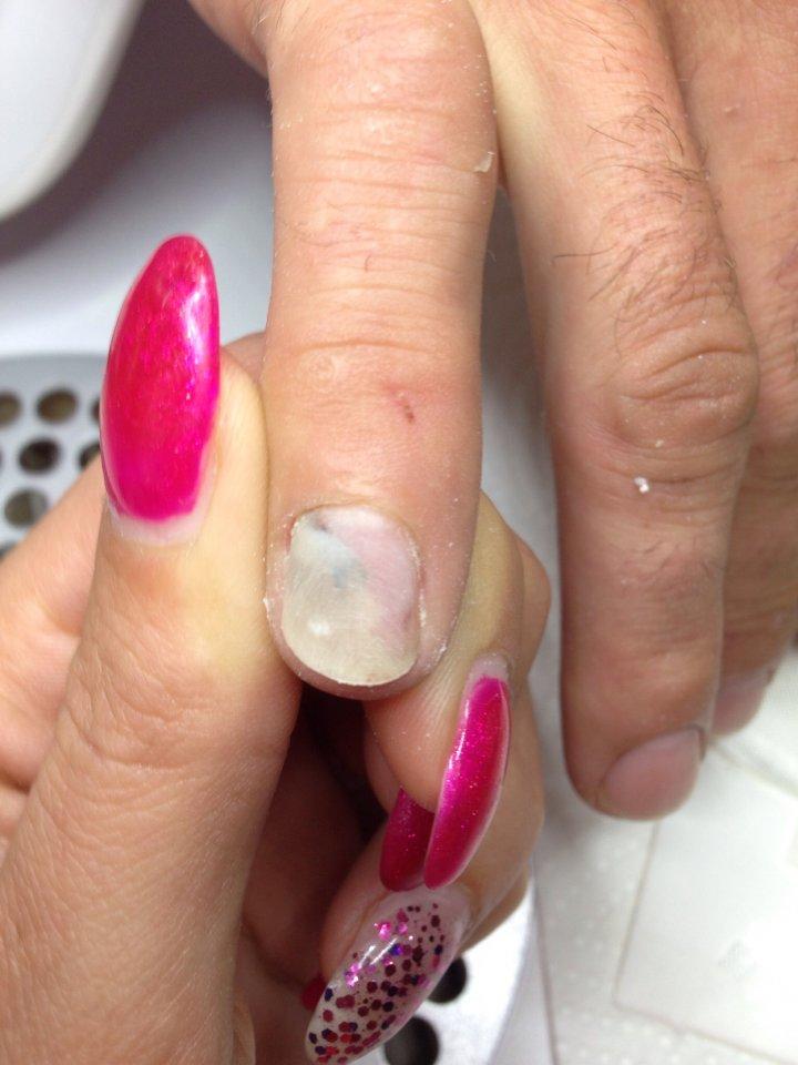 Bild Vorbereiteter Nagel - Nagelkrankheiten