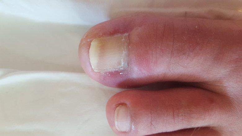 Bild Nagelpilz Und Eingewachsener Nagel - Nagelkrankheiten