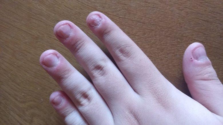 Bild img e - Künstliche echte Nägel für Nägelkauer