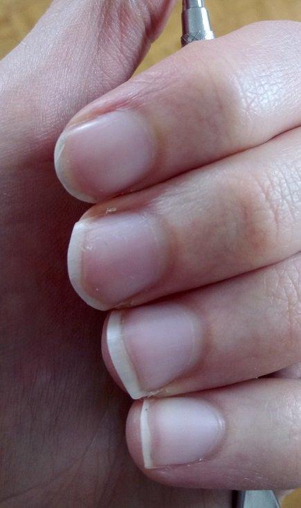 Wuchernde Nagelhaut