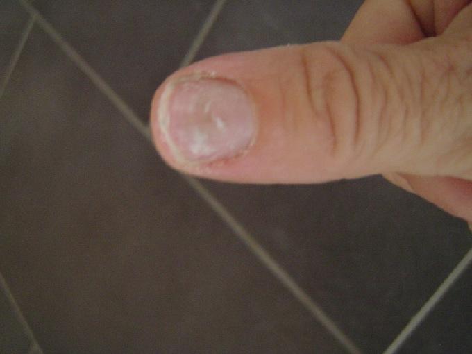 Bild X Nagelpercent Nagel Klein - Gru00fcner Fingernagel - Nagelkrankheiten