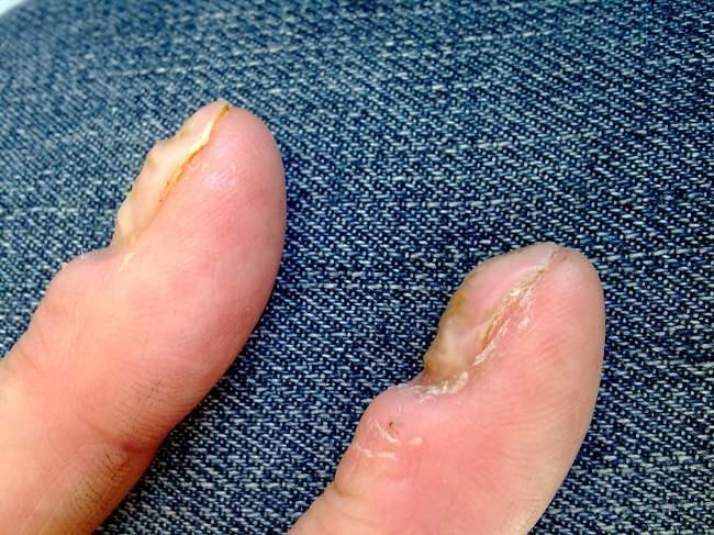 Wellige Fingernägel