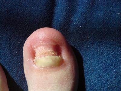 Was von gribka des Nagels auf der Hand hilft