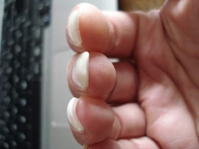 Bild Mittelfinger Extrem Dick Vorne Und Gelnägel