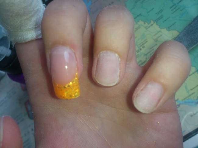 Bild nagel - Nagelkrankheiten