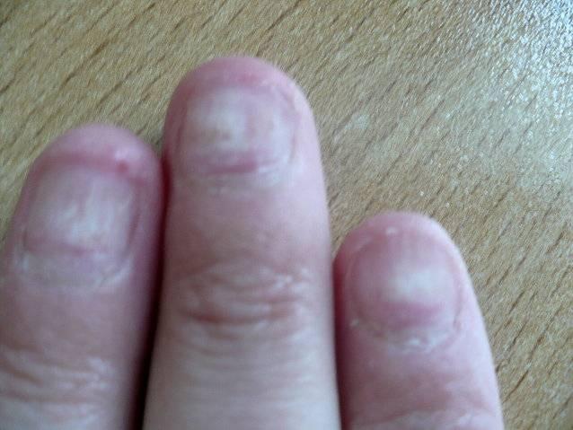 Total gelnägel nägel kaputt nach Weiche Fingernägel