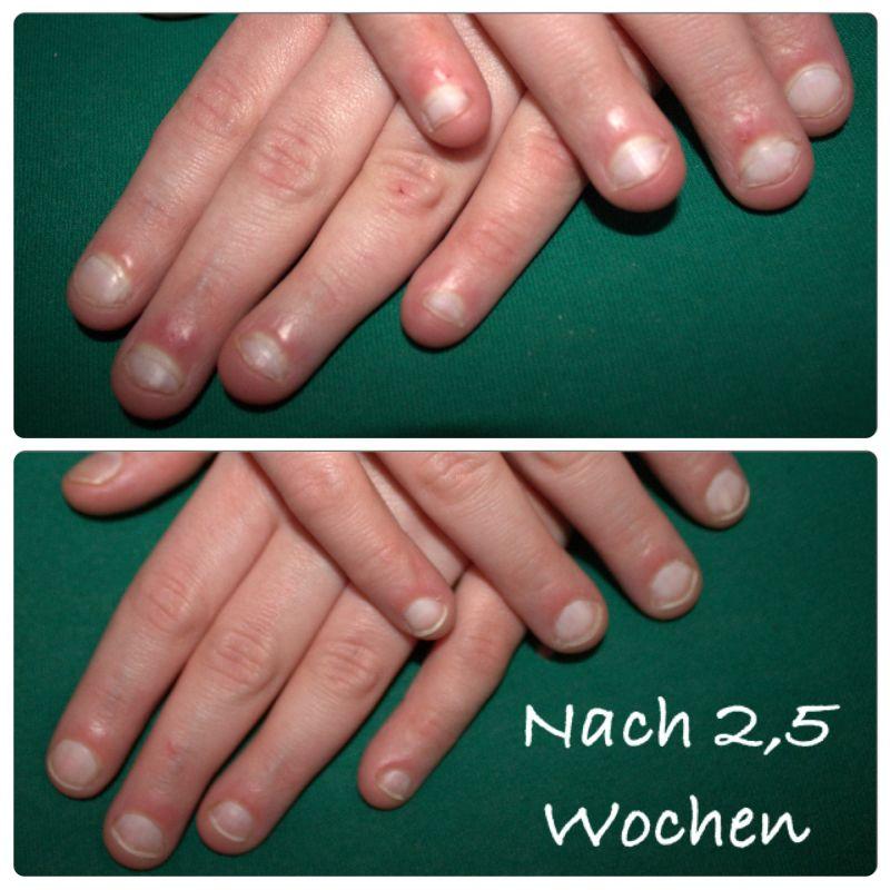 Bild Beide Hände - Nägel kauen / Nagelbeißer