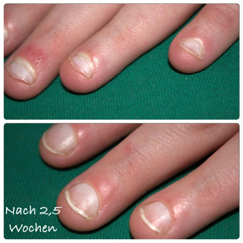 Bild Linke Hand nähere Ansicht der - Nägel kauen / Nagelbeißer