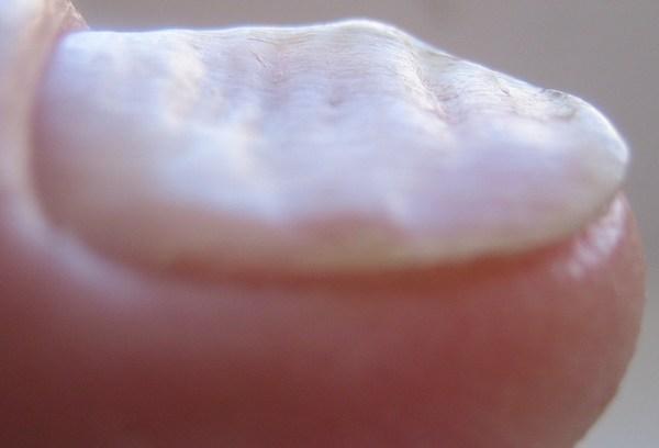 Gribok auf den Nägeln der kleinen Finger