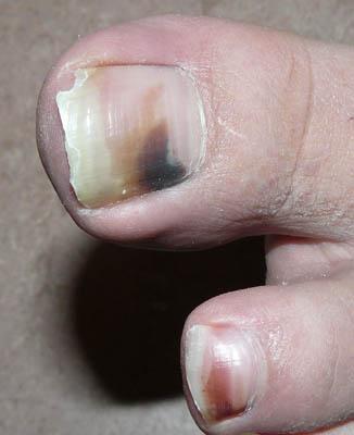 weise flecken auf fingernagel