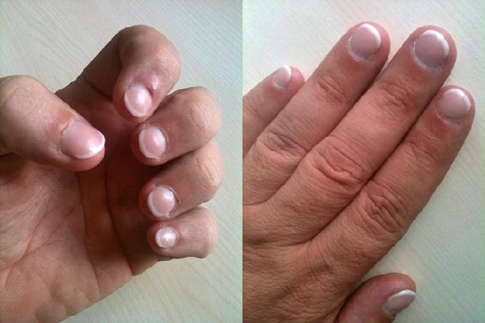Bild nails final - Künstliche Nägel bei männlichen