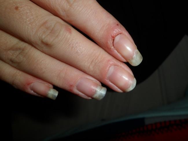 haut knibbeln finger
