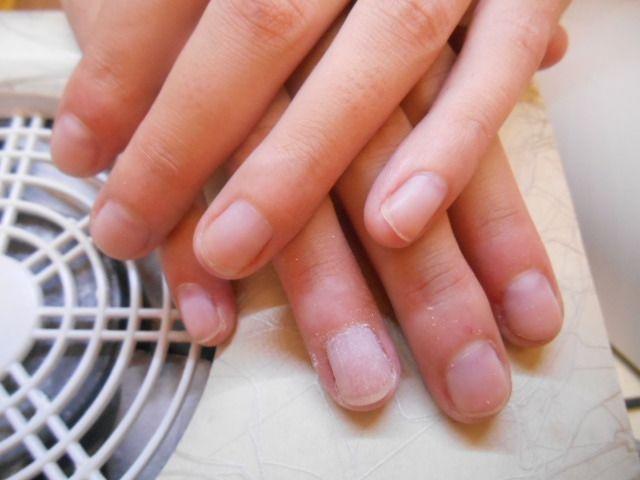 Gel sehr kurze nägel Short Nails