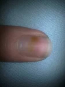 Fleck Auf Dem Nagel - Hilfe Was Ist Das?