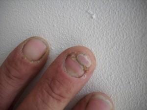 Wie den Nagel getroffen gribkom zu heilen