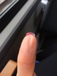 Linker Daumen, hochgewachsenes Nagelbett Nagelbett wächst hoch in Maniküre