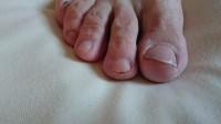 Nagel Fußpflege bei meiner Mama in Pediküre