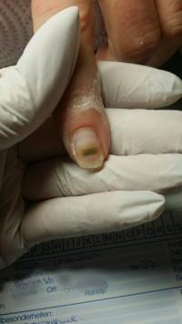 Betroffener Nagel Kundin mit Nagelpilz in Maniküre