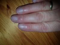 2 Delle längs im Nagel, was kann das sein? in Nagelkrankheiten