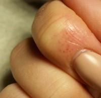 rote Blutpünktchen Kleine rote Blutflecken an der Nagelmatrix in Nagelkrankheiten
