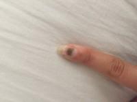 bluterguss unterm nagel