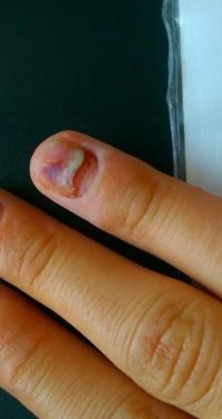 Nagel finger blau geklemmt Ich hab