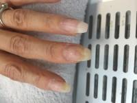 Hier wird es gelblich Nagelpilz oder was anderes? in Nagelkrankheiten