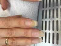 hier wie man sieht, ein Fleck Nagelpilz oder was anderes? in Nagelkrankheiten