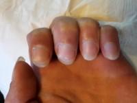 Draufsicht Welche Form für die Nägel ? in Maniküre