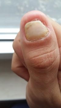 Traumanagel - Daumen Nagel Heilung Nach Quetschung
