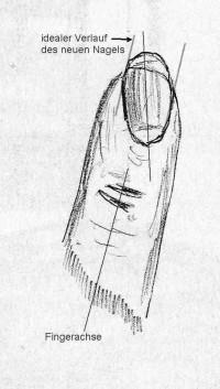 Richtung wie es wohl die meisten als schön empfinden würden. Schräg sitzender Fingernagel, was tun? in Tipps / Tricks