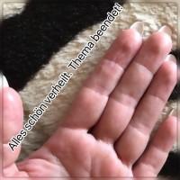 Finger Fingerkuppen reißen auf / Juckreiz - was kann das sein? in Nagelkrankheiten