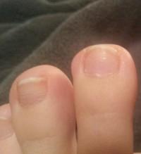 Der dritte Nagel links hat auch eine Querrille Nagelpilz oder Nagelpsorasis oder ? in Nagelkrankheiten