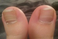 Hier ist die gelbliche Verfärbung gut zu erkennen Nagelpilz oder Nagelpsorasis oder ? in Nagelkrankheiten
