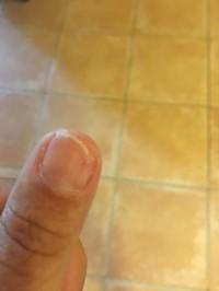 Nagel abgerissen Fingernagel am Daumen ab - gruselig! in Nagelkrankheiten