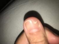 Bild von gestern Fingernagel am Daumen ab - gruselig! in Nagelkrankheiten