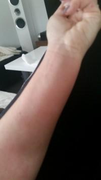 Li Unterarm Trotz Allergiker Gel Blasen an den Fingern in Nagelkrankheiten