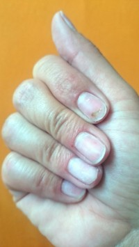 2016_06_10 Grüner Nagel unter Kunstnägeln in Nagelkrankheiten