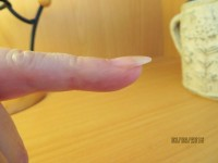 abgelöster Nagel von der Seite Ablösung des Naturnagels unter der Modellage in Nagelkrankheiten