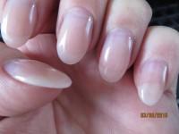 Lösung des Naturnagels am kleinen Finger Ablösung des Naturnagels unter der Modellage in Nagelkrankheiten