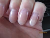 Lösung der Nagelplatte am kleinen Finger 2 Ablösung des Naturnagels unter der Modellage in Nagelkrankheiten