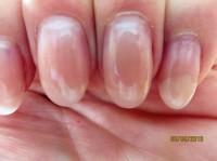 Lösung der Nagelplatte des kleinen Fingers 3. Ablösung des Naturnagels unter der Modellage in Nagelkrankheiten