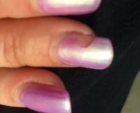 Mein Mittelfinger- abgeplatzt Studionägel halten nicht, woran kann das liegen? in Gelnägel